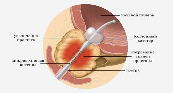 трансуретральная микроволновая терапия